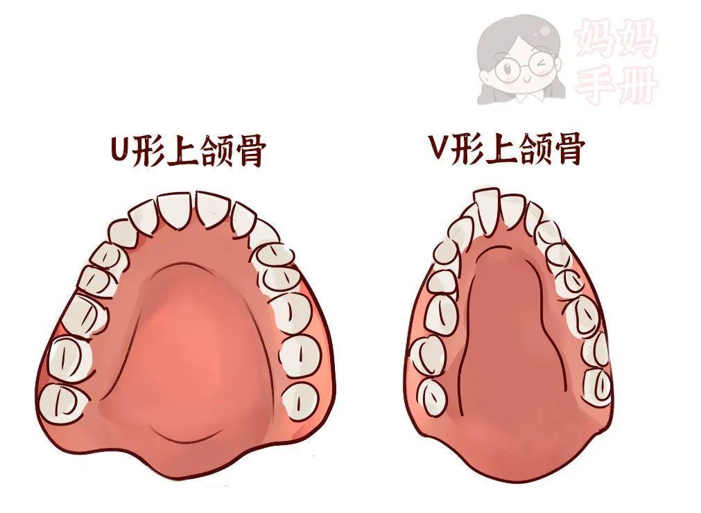 换牙期关键时期,影响孩子一辈子!家长必看 - 第7张  | 深圳市羽盛信息科技有限公司