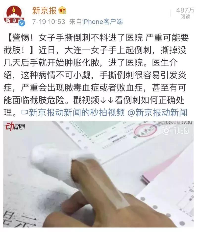 想知道孩子的身体如何?看这个部位就可以 - 第5张  | 深圳市羽盛信息科技有限公司